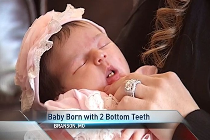Branson Baby Born with 2 Front Teeth_7054128058101941731
