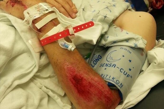 Injured Firefighter 2_-4101622145468776405