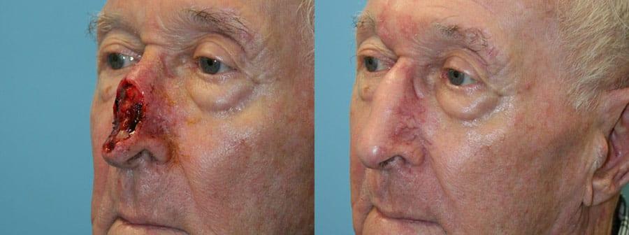 Skin Cancer Reconstruction 03 - Fox Facial Plastic Surgery Center