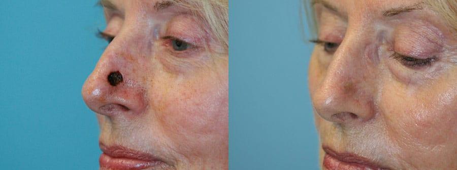 Skin Cancer Reconstruction 05 - Fox Facial Plastic Surgery Center
