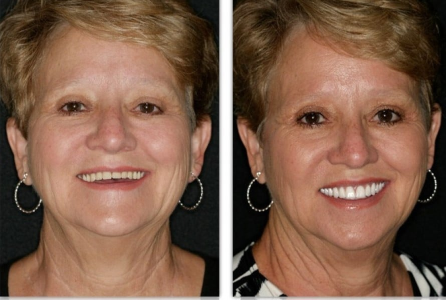 FOY™ Dentures   Before and After Photos