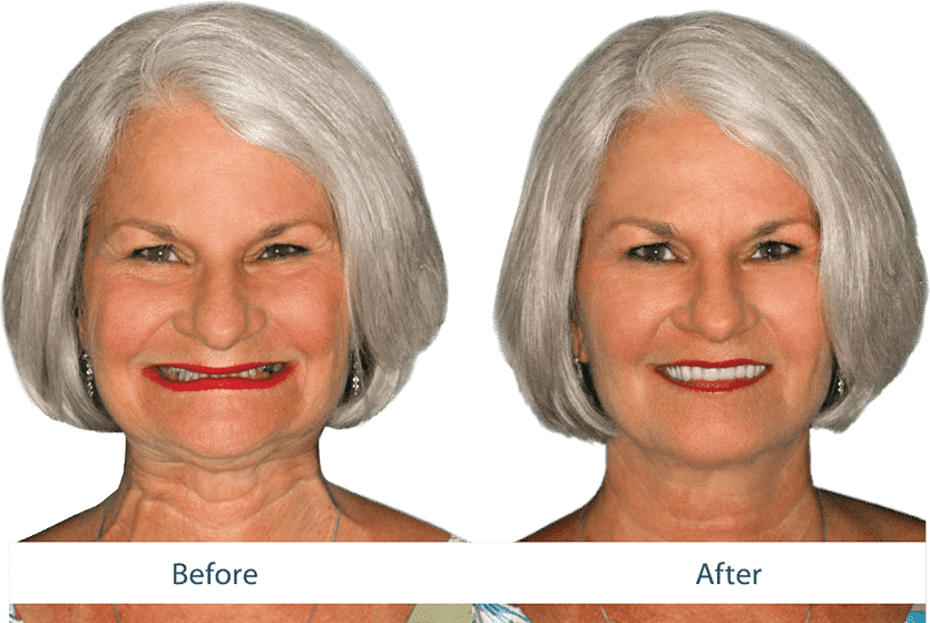 Dentures That Make You Look Younger