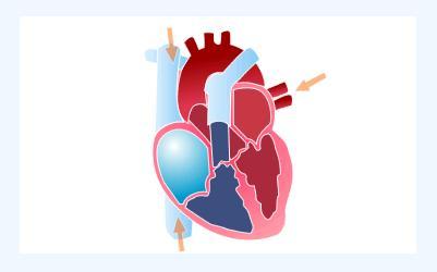 Como bate o coração 1