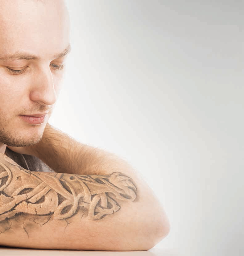 Rimozione Tatuaggi - Dott. Francesco Gualco Dermatologo Genova
