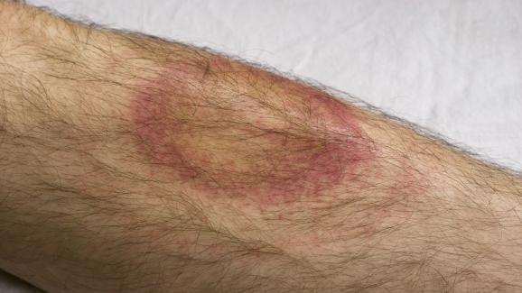 Un érythème migrant apparu après la morsure d\'une tique porteuse de la bactérie borrélie.