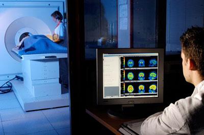 observation d'un cerveau