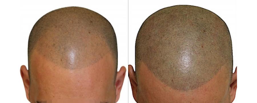 Tricopigmentazione - Frauage