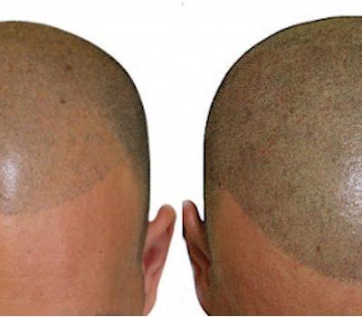 Tricopigmentazione home 2