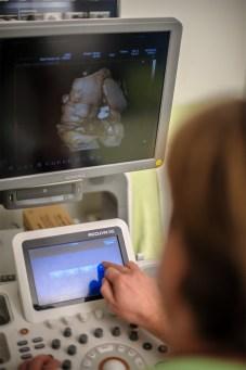 Unser Ultraschallgerät 2