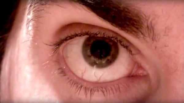 Bar eye