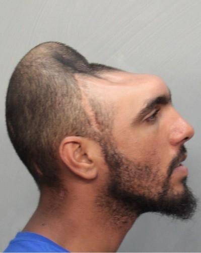 half head man