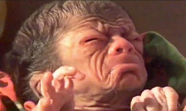 baby-born-with-rare-disease-progeria-days-ago