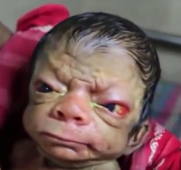 baby-born-with-rare-disease-progeria