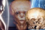 starchild skull alien origin