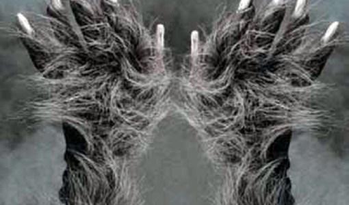 Hairy hands of Dartmoor