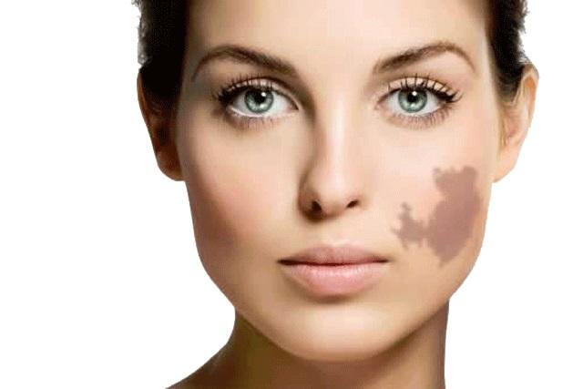 Birthmark woman