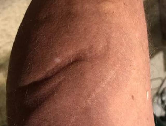 John Edmonds alien scar