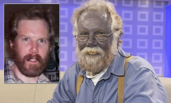 Paul Karason the blue man
