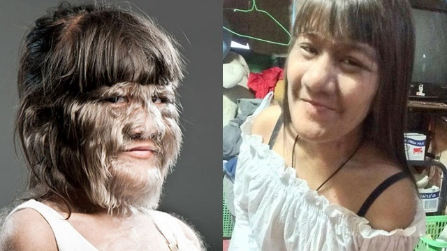 World's Hairiest Girl Finds Love Decides To Shave Herself