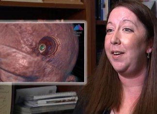 New York Woman Relieved To Find Out 'Brain Tumor' Really Just A Parasite
