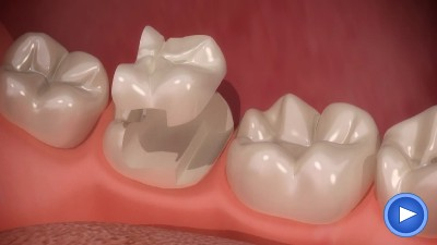 Dental inlays  onlays  Cheadle Hulme Stockport Cheshire  Fix tooth