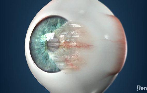 Pterygium Excision