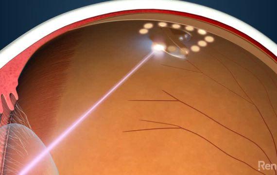 Laser Retinopexy
