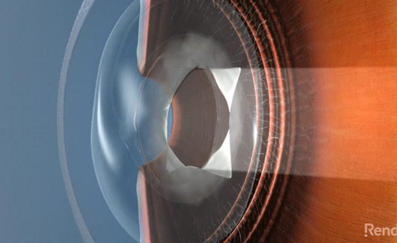 YAG Laser Capsulotomy | Freedom Eye Laser