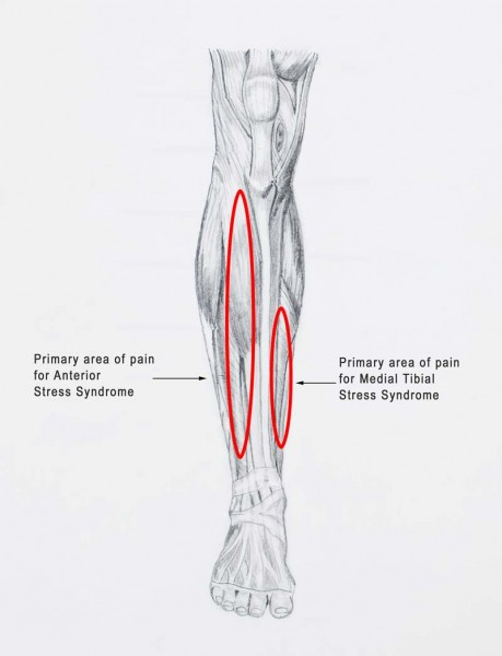 diagram of tibia stress fracture yamaha grizzly 350 wiring shin splints how smart coaches avoid them freelap usa medial tibial syndrome