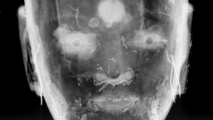 detail of a radiograph of a buddha sculpture's head