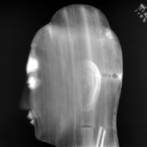 side view x ray