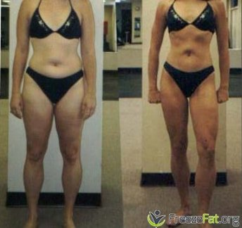 freezefat.org - before and after freezing fat cells at home