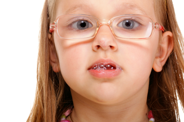 Seven Tips to Stop Your Child with Special Needs from Drooling - Friendship Circle - Special Needs Blog : Friendship Circle — Special Needs Blog