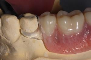 CASE GALLERY  Friendship Dental Laboratories Inc
