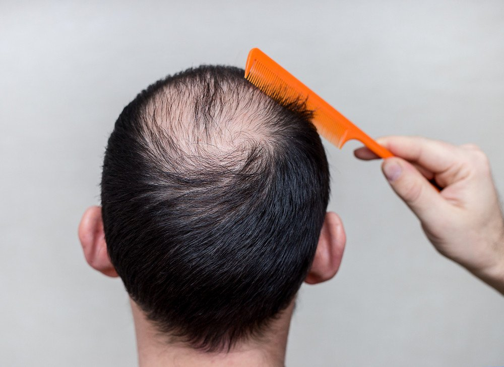 Alopezie Frisuren Magazin
