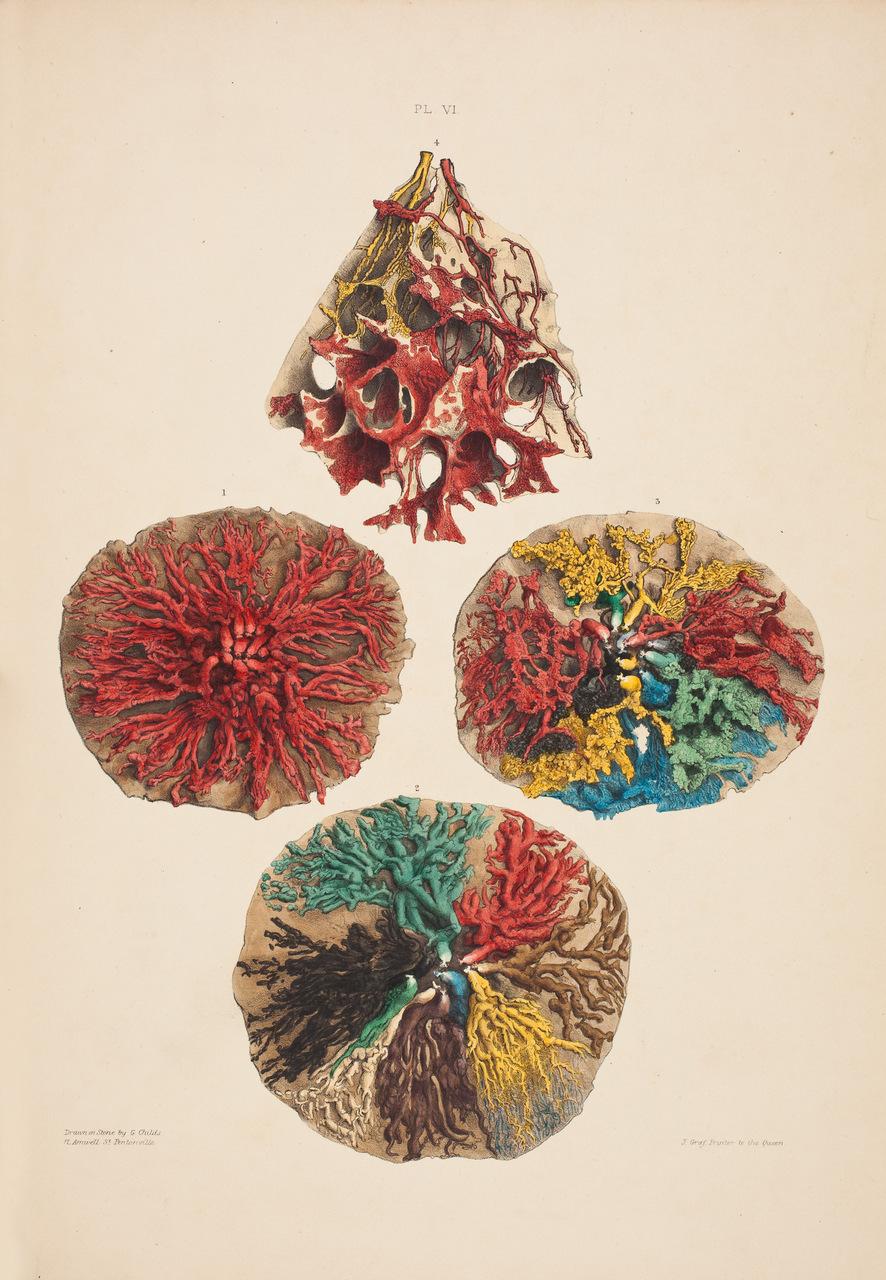 """Condotti e ghiandole del seno femminile. Tavola tratta da """"On the Anatomy of the Breast"""", di Astley Cooper (1768–1841)"""