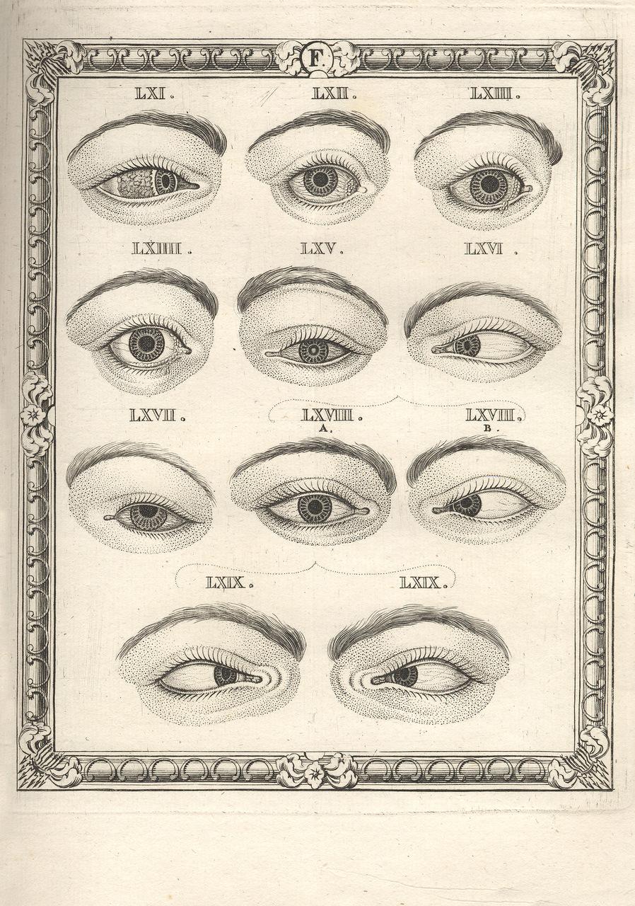 "Tavola tratta da ""Nova Nosographia Ophthalmica"", 1776, di John Taylor (1703-1772)"