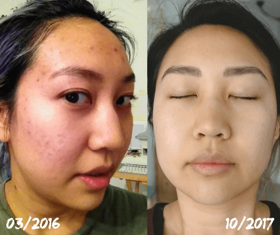 before after acne cystic acne food allergies acid reflux