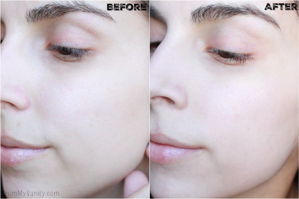 5 Benefits I Experienced from Using My PMD | Personal MicroDerm | Before/After Results | Left Side
