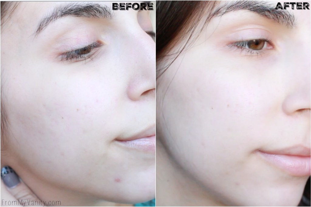 5 Benefits I Experienced from Using My PMD   Personal MicroDerm   Before/After Results   Right Side
