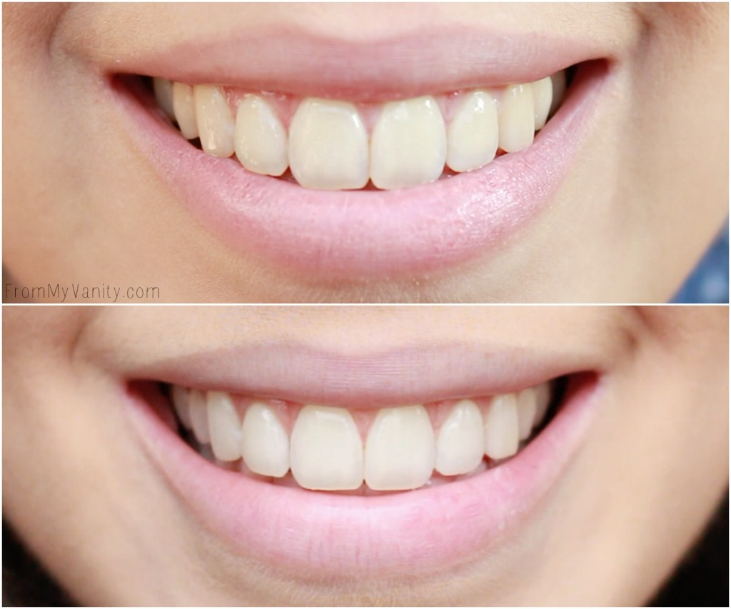 Achieving Whiter Teeth Naturally with Tom's of Maine   Before Using & After Just Two Weeks of Using!