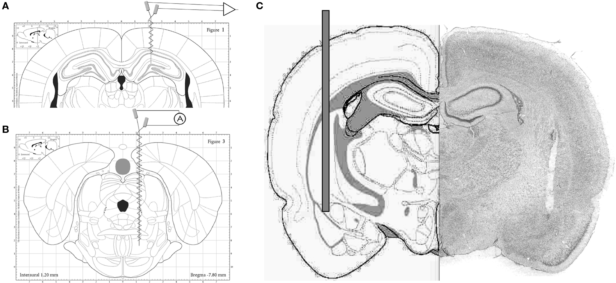 reticular formation diagram photocell wiring uk limbic system location cerebral cortex elsavadorla