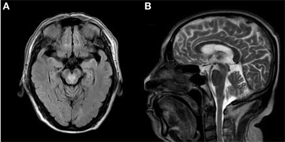 Vessel Cerebral Peduncle