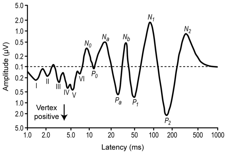 Evoked Potentials, Auditory; Auditory Evoked Potentials