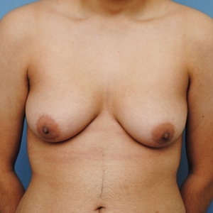 Double Incision Mastectomy - Top Surgery