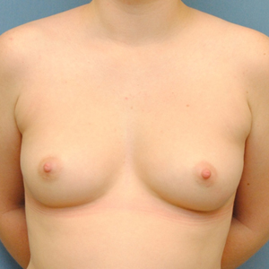 Keyhole Mastectomy - Top Surgery