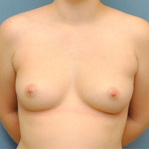 Periareolar Mastectomy Procedure