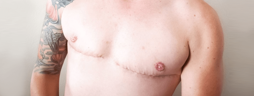 Will I Need To Continue Breast Cancer Screening After Top Surgery