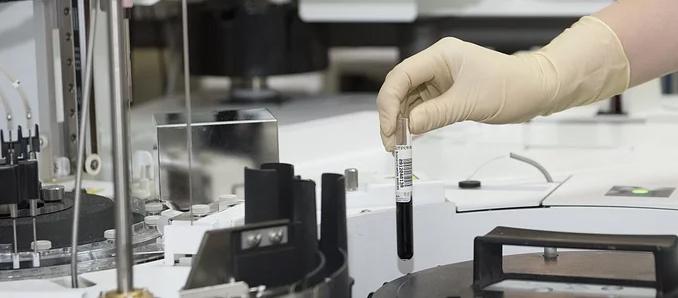Virologe Streeck hält Kritik an Drosten-Studie für berechtigt