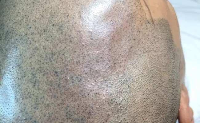Smp Correction Full Micropigmentation